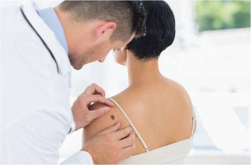Le mélanome se forme dans environ 70 % des cas sur une peau auparavant indemne, et dans environ 30 % des cas sur un grain de beauté préexistant de type nævus (illustration).