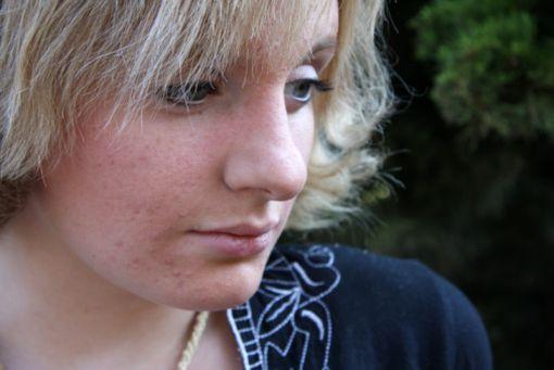 DIANE 35 devrait bientôt être à nouveau disponible en France pour les jeunes filles ou femmes ayant une acné modérée à sévère résistante aux traitements de première intention (en l'absence de facteurs de risque thrombo-emboliques).