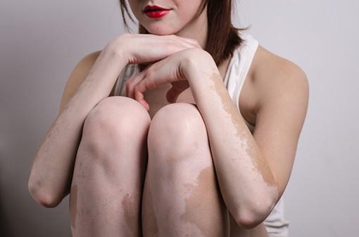 Une meilleure connaissance du vitiligo permet d'envisager des traitements plus efficaces (illustration).